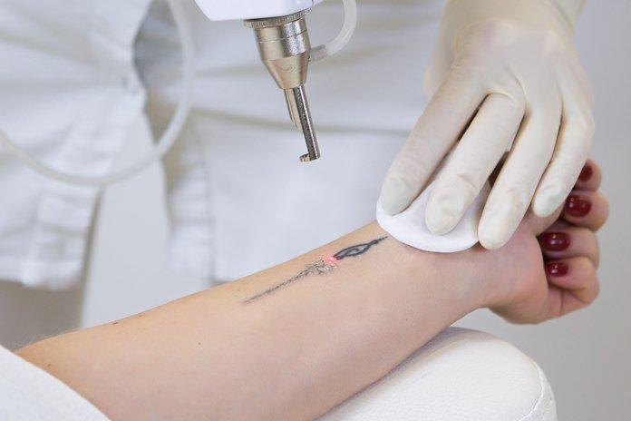 Что такое лазерное удаление татуировки
